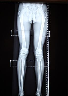 leg xray fixed